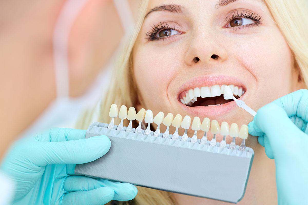 Реставрация зубов — виниры